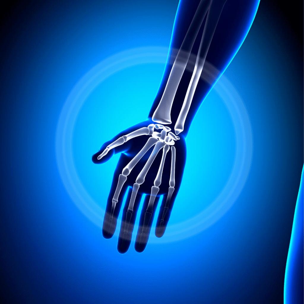 wrist pain when bending